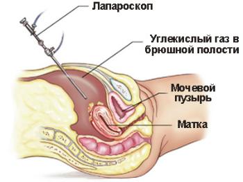 Фото:Лапароскопия матки